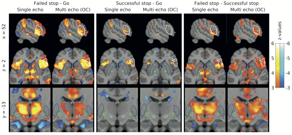 fMRI of the Basal Ganglia at 7T using single- and multi-echo protocols