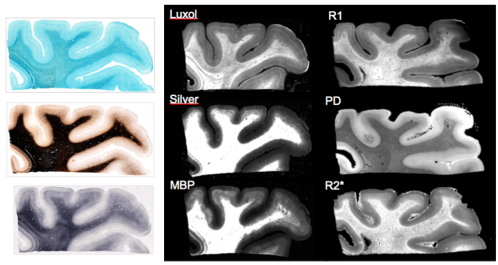 Differences in cortical and white matter myelination