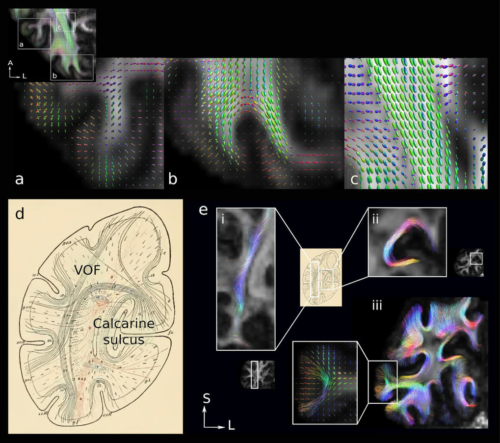 A multi-modal approach to in vivo U-fibre mapping in the early visual processing stream