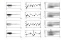 "We investigated the early (""preattentive"") cortical processing of voice information, using the so-called ""mismatch response"". This brain potential allows inferences to be made about the ..."