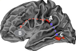 There are two crucial changes in children's brain structure: They have a thinner cortex, especially in region A, and their fibre tracts between two important language areas (A and B) which act as a kind of data highway to transport the information between these two brain areas are less developed. © MPI CBS