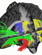 "For more information see ""The brain basis of language processing: From structure to function."" Physiological Reviews, 91, 1357-1392. Short overview of the current model. ...an interactive model."