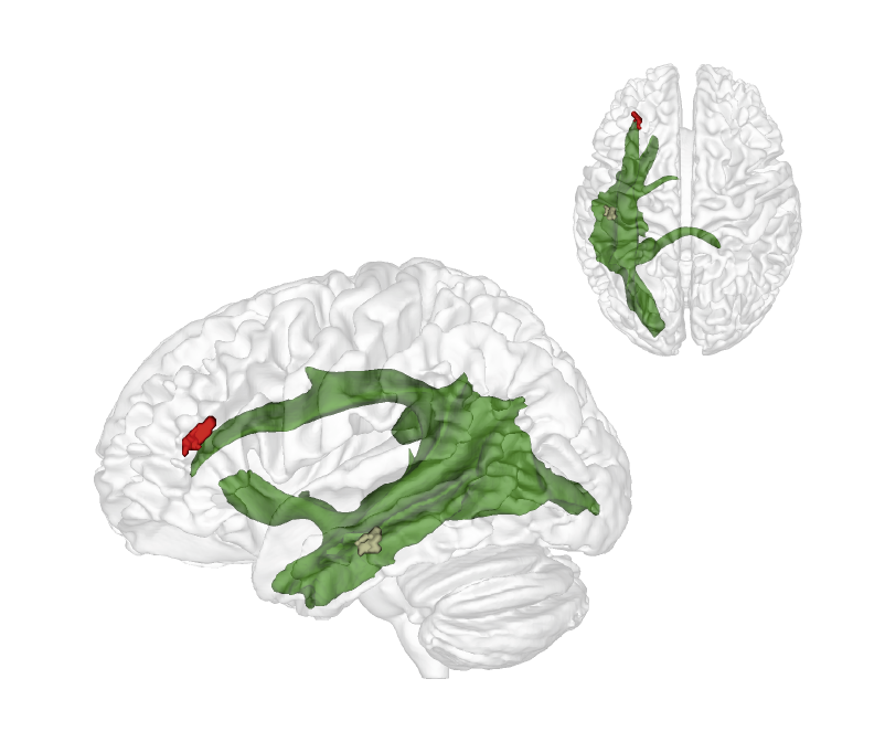 The maturation of fibres of a brain structure called the arcuate fascicle (green) between the ages of three and four years establishes a connection between two critical brain regions: A region at the back of the temporal lobe (brown) that supports adults thinking about others and their thoughts and a region in the frontal lobe (red) that is involved in keeping things at different levels of abstraction and, therefore, helps us to understand what the real world is and what the thoughts of others are. © Nature Communication