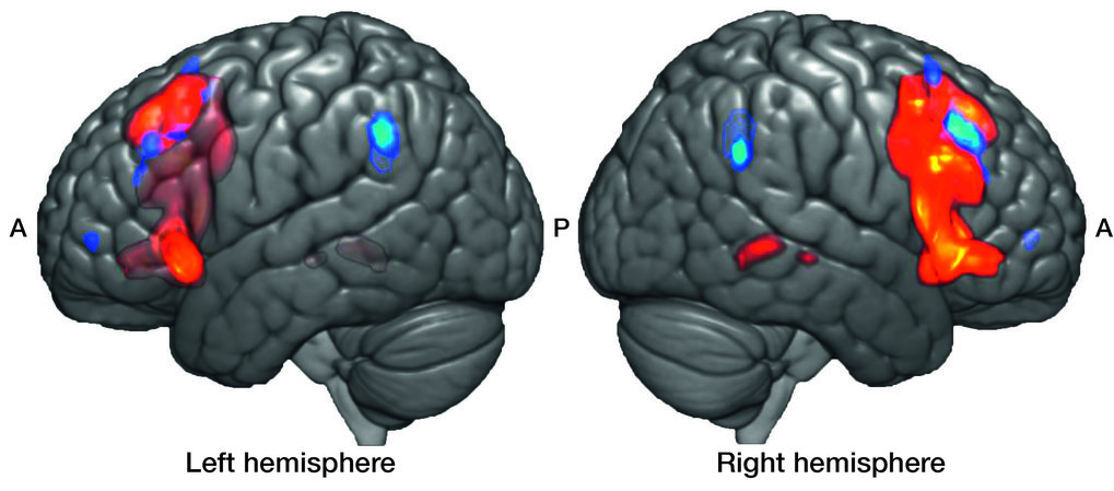 Broca's area, restricted to the left hemisphere, is centrally involved in language processing. Now, scientists at MPI CBS have learned that the equivalent area, in the right hemisphere (red), plays a similar role but for the processing of music. More specifically, it's activated when we notice violations of musical grammar. The areas in blue are typically associated with working memory and show increased brain activity when the grammar gets longer and more complicated (A - anterior, P - posterior). © Scientific Reports